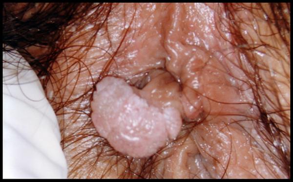 Hpv intestino sintomi. Traducere