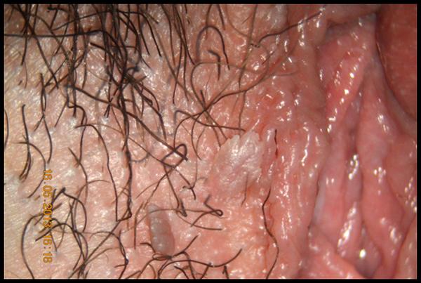 Papilloma virus lesione lieve, Papilloma virus lesione lieve